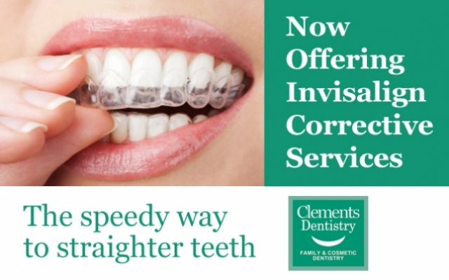 Clements' Family Dentistry Now Offers Invisalign